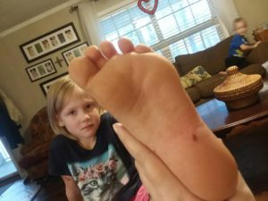 www.LinesFromTheVine.com- Darby's Foot